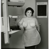 Karen: Reconstructed Right Breast